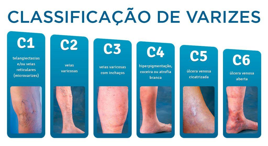 Boala varicoasa - varicele hidrostatice